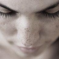 Lighten Dark Spots, Eye Wrinkle, Skin Care Treatments, Acne Scars, Freckles, Face And Body, Eyes, David, Cat Eyes