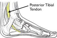 This is the posterior tibial tendon