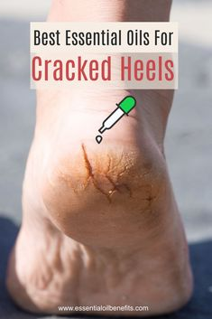 Essential Oils For Cracked Heels: When Achilles Got Nothing On You The best overnight treatment for cracked heels! Discover the best essential oils, blends, home remedies and ways to get rid of cracked heels permanently. Best Essential Oils, Essential Oil Uses, Essential Oil Diffuser, Young Living Oils, Young Living Essential Oils, Cracked Heel Remedies, Cracked Heals Remedy, Home Remedies, Health Remedies