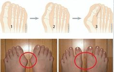 2 Ways to Remove Bunions and Heal Swollen Joints - http://www.shakaharitips.com/2-ways-to-remove-bunions-and-heal-swollen-joints/