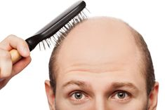 Hair loss is common in men and women at the age of 50 but it's panic when it starts in young age. There may be lots of factors behind baldness or alopecia. Are you going bald? Read on for a solution! #baldness #hairloss #haircare #hairtransplant #india