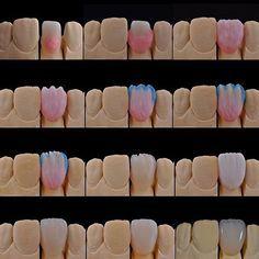 Dental Life, Dental Art, Smile Dental, Dental Teeth, Dental Lab Technician, Dental Bridge Cost, Cosmetic Dentistry Procedures, Teeth Whitening That Works, Dental Veneers