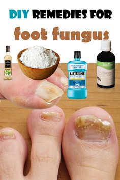 "DIY remedies for foot fungus ""Two types of fungi are affecting the feet. One is the toes fungus and the other is the athlete's foot, a fungus that affects Natural Home Remedies, Herbal Remedies, Health Remedies, Foot Remedies, Infection Fongique, Do It Yourself Nails, Toenail Fungus Remedies, Health And Beauty Tips, Natural Medicine"