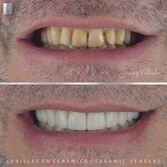 Diseño de sonrisa en cerámica en color blanco sutil. Donde mejoramos la forma, el color y el tamaño de los dientes de nuestro paciente, obteniendo un resultado armónico, acorde con su anatomía facial Dental, Facial, Color, Shape, White People, Facial Treatment, Facial Care, Colour, Face Care