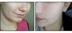 Конспект проблемной кожи с густым секретом