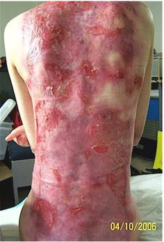 Dystrophic epidermolysis bullosa - Genetics Home Reference