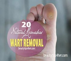 20 Home Remedies for Wart Removal That Actually Works | Look Good Naturally