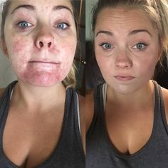 The Calm line and the genius pads tamed her skin! She also used Arbonne makeup to cover up the redness!! Experience the Arbonne difference, contact me at www.amandazahorsky.arbonne.com