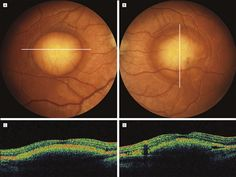 BEST(vitelliform) MACULAR DYSTROPHY A and B, Fundus shows well-demarcated vitelliform lesions in the central macula. C and D, Corresponding OCT sections show elevation at the level of the retinal pigment epithelium, with preservation of the outer retinal layer.