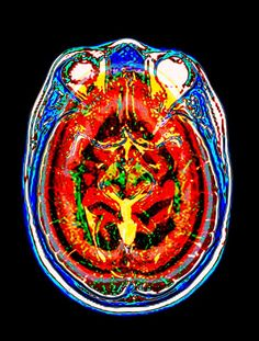 Gilbert and George coloured brain scan.