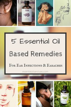 Here are 5 Essential Oil Based Remedies Formulated to Treat Ear Infections and Earaches. Also learn More Non-Essential Oil Based Tips and Tricks for Curing and Preventing Ear Infections. Oils For Ear Infection, Ear Infection Home Remedies, Earache Remedies, Dogs Ears Infection, Teeth Whitening Remedies, Teeth Whitening System, Essential Oils For Earache, Chamomile Essential Oil, Oils For Ear Ache