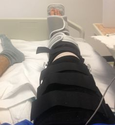 """10 Problems Only People With Knee Injuries Understand via Thought Catalog LOL """"Somehow sit down on the toilet without killing yourself"""" Acl Surgery Recovery, Acl Recovery, Knee Replacement Recovery, Knee Replacement Surgery, Mcl Injury, Knee Injury, Broken Knee Cap, Broken Leg, Exercises"""