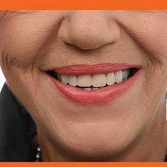 3 skin whitening natural masks ~ Health Advices