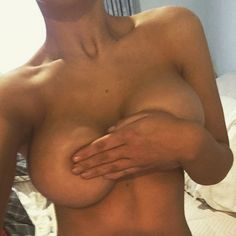Hand bra! Transformed at 4 months post op. Dr Nguyen's patient has gone from a 10B cup to a wonderful 10E/F! She chose 470cc extra high profile implants.