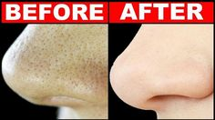3 days treatment to get rid of large pores | Guaranteed results