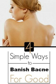 Health Matters: 4 Simple Ways to Banish Bacne for Good