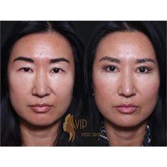 Blepharoplasty nyc asian dating