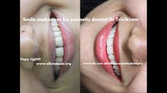 All Smiles Dental Clinic, Bangalore offers best Cosmetic dentistry services for patients struggling with Oral problems with expert Cosmetic Dentist at fare rates Cosmetic Dentistry Cost, Composite Bonding, Porcelain Crowns, Porcelain Veneers, Smile Dental, Smile Makeover, Dentist In, Good Smile, Acupuncture