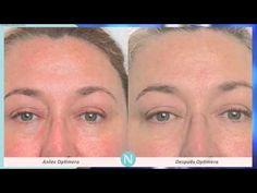 Nerium Optimera Fotos de Resultados Antes y Después