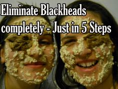 Eliminate Blackheads completely - Just in 5 Steps - Eve's Special