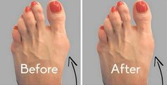 First, let me say that bunions can be treated surgically. However, if you're not a fan of going under the knife we've found the perfect natural remedy which will help you get rid of them quickly and painlessly. This remedy will flush out the salt deposits and restore your feet to their normal state. Bunion…
