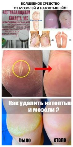 КОПЕЕЧНОЕ СРЕДСТВО ОТ МОЗОЛЕЙ И НАТОПТЫШЕЙ Cracked Feet Remedies, Foot Remedies, Diy Projects For Teens, Diy For Teens, Fitness Armband, Islamic Phrases, Pin On, Beauty Care, How To Lose Weight Fast