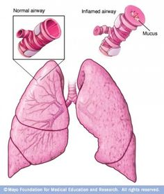 Chances are that you know someone with asthma. In fact, if there are just 15 people in your family or extended family, then it is probable that you are related to someone with asthma. Asthma effects about 20 million Americans, 5 million of which are...