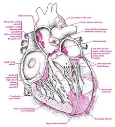 Cardiac disorders & diseases - this site has a lot of helpful looking diagrams, but it's healthtipsinsuran. and has a lot of ads, etc. So please check accuracy carefully before using. Nursing Tips, Nursing Notes, Physician Assistant, Medical Assistant, Medical Humor, Genius Ideas, Cardiac Nursing, Nursing Assessment, Respiratory Therapy