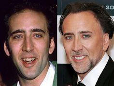Famous Smiles. Before and After (10 images)