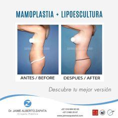 CASO MAMOPLASTIA DE AUMENTO + LIPOESCULTURA  Quieres mejorar la silueta de tu cuerpo?  Contáctanos y descubre tu mejor versión!  Dr. Jaime Alberto Zapata - Cirujano Plástico  Miembro de: SCCP - SBCP - ASAPS - FILACP - ISAPS  Contáctanos: (+57 2) 660 25 67 - (+57) 316 694 82 63.  #mamoplastia #aumentodesenos #lipoescultura #breastaugmentation #liposculpture #antesydespues #cx #cirugiaplastica #cirugiaplasticacolombia #plasticsurgery #plasticsurgerycolombia #cirugiaestetica #estetica #colombia