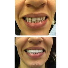 Dental Veneers, Smile Makeover, Dental Bridge, Smile Design, Dental Crowns, London Life, Cosmetic Dentistry, Dental Implants, Orthodontics