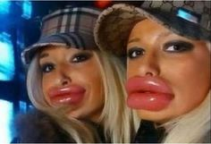 The Most WTF Twin Photos We've Ever Seen - Likes