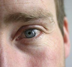 What Your Eyes Say About Your Brain