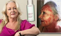 Clarins beauty cream chemical ruined my face: After doctors issue allergy  warning, dating agency