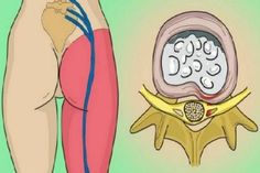 How To Release The Pinched Nerve In Your Lumbar Area (Sciatica): 2 Simple Ways Of Getting Rid Of The Pain! Sciatica Pain Relief, Sciatic Pain, Sciatic Nerve, Nerve Pain, Back Pain Relief, Lumbar Pain, Intervertebral Disc, Degenerative Disc Disease, Back Pain