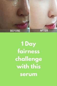 1 Day fairness challenge with this serum A magical Skin whitening serum to whiten your skin in just 1 day. After 1 time use you will see the difference. Use this magical skin whitening serum and get fair skin instantly 100% Works. This serum will remove all dark spots, pigmentation, tanning completely from your skin Ingredients required Lemon juice Glycerin Almond oil …