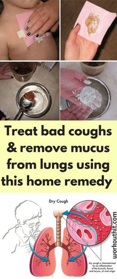 Treat bad coughs and remove mucus from lungs using this home remedy – This works great for kids - Workout Hit