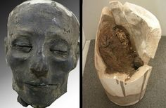 Oldest Case of Heart Failure Found in Ancient Mummy : Discovery News