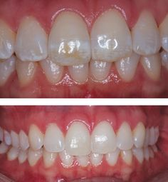 Using Combination Microabrasion, MI Paste, And Whitening To Treat Fluorosis Stains - Dental Economics