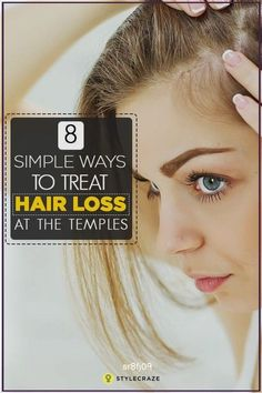 8 Simple Ways To Treat Hair Loss At The Temples Thinning hair can be annoyingly unpleasant, especially when it starts at your temples. Worry not, here we give you simple ways to treat temp #Mind-Blowing #Short #Hairstyles #Katia #Winter #CUSTOM #NaturalHairLossRemediesThatWork