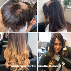 At Hair Solved we are committed to restoring confidence by giving our clients beautiful, natural hair. Katie's system was created by the team at Hair Solved London #Alopecia #AlopeciaAreata #EnhancerSystem #HairSolved #HairSystem #HairEnhancer