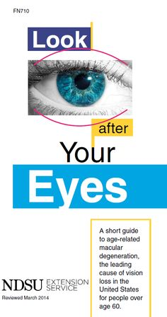 Look After Your Eyes