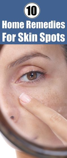 Top 10 Home Remedies for Skin Spots