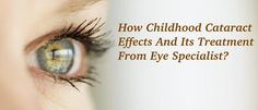 Here you know about childhood cataract and its effects and what should you do first if you are seeing this. Eyes Problems, Cool Eyes, Surgery, Clinic, Perspective, Childhood, Children, Infancy, Point Of View