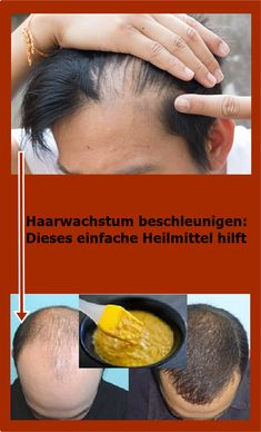 Accelerate hair growth: this simple remedy helps Haarwachstum beschleunigen: Dieses einfache Heilmittel hilft Afro Hair Care, Diy Hair Care, Hair Care Tips, Castor Oil For Hair, Hair Oil, 4c Hair, Natural Hair Growth Remedies, Hair Loss Cure, Hair Growth Oil