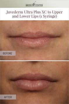 Injectable fillers work by plumping up the treatmen. Facial Fillers, Dermal Fillers, Lip Fillers, Lip Plumber, New Jersey, Botox Lips, Lip Augmentation, Thin Lips, Skin Line