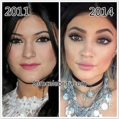 before after forehead Kylie Jenner Plastic Surgery Before and After Photos Nose Job, Lip Injections, B. Kylie Jenner Plastic Surgery Before and After Photos Nose Job, Lip Injections, Botox injections and Breast Implants photos 6 Kylie Jenner Nose Job, Kylie Jenner Plastic Surgery, Plastic Surgery Photos, Celebrity Plastic Surgery, Kendall Jenner, Botox Before And After, Rhinoplasty Before And After, Botox Injections, Penelope Cruz
