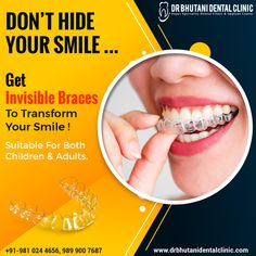 𝗗𝗼𝗻'𝘁 𝗛𝗶𝗱𝗲 𝗬𝗼𝘂𝗿 𝗦𝗺𝗶𝗹𝗲 Get invisible Braces to transform your smile!😀 with 𝘿𝙧. 𝘽𝙝𝙪𝙩𝙖𝙣𝙞 𝘿𝙚𝙣𝙩𝙖𝙡 𝘾𝙡𝙞𝙣𝙞𝙘 𝐒𝐮𝐢𝐭𝐚𝐛𝐥𝐞 𝐟𝐨𝐫 𝐛𝐨𝐭𝐡 𝐂𝐡𝐢𝐥𝐝𝐫𝐞𝐧 & 𝐀𝐝𝐮𝐥𝐭𝐬. . To Book an Appointment! ☎️ +91 9810244656 . #dentalclinicindelhi #bestdentalclinic #bestdentalclinicindelhi #dentalclinic #bestdentist #bestdentistindelhi #dentistindelhi #teethbraces #invisibleteethbraces #teethaligner #invisiblealigner #dentalclinicinpitampura #dentalclinicinrajourigarde Best Dentist, Dentist In, Braces Cost, Invisible Braces, Teeth Braces, Clinic, Dental, Smile, Children