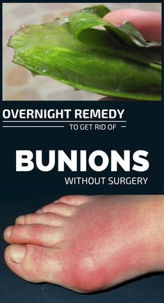 Bunions are some ugly growths that appear on the interior of the feet, bear the toes. They are the result of a shift of bones from the normal position. Women are more prone to bunions than men. Bunion Remedies, Foot Remedies, Health Remedies, Homeopathic Remedies, Healthy Tips, How To Stay Healthy, Bunion Exercises, Get Rid Of Bunions, Natural Remedies