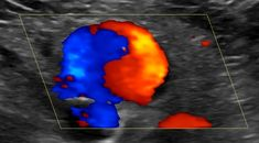 Clinical signs of arterial injury were present (pulsating lump, vascular murmur). Pediatric Radiology, Oral Pathology, Nuclear Medicine, Hematology, Medical Art, Ultrasound, Nursing Students, Yin Yang, Pediatrics